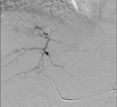 Arteriogram - questionable hypervascular mass