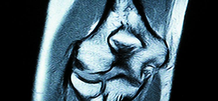 X-ray of a knee.