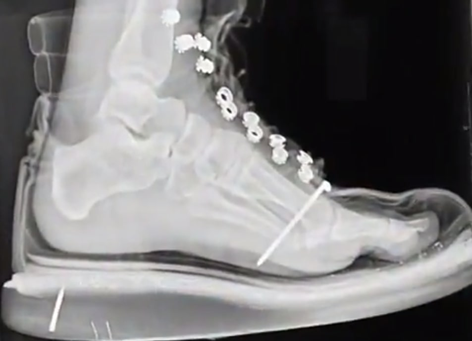 Nail through boot into foot