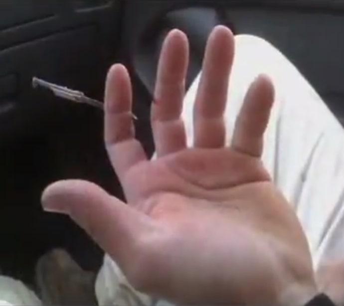 Nail through finger